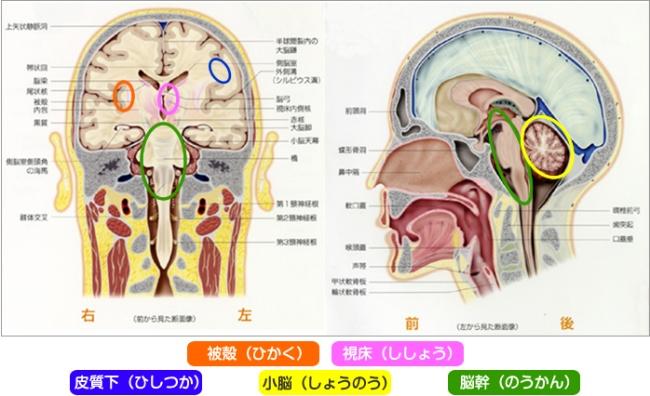脳幹 出血